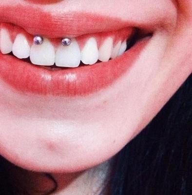 Piercing smiley / frein labial sur femme au beau sourire